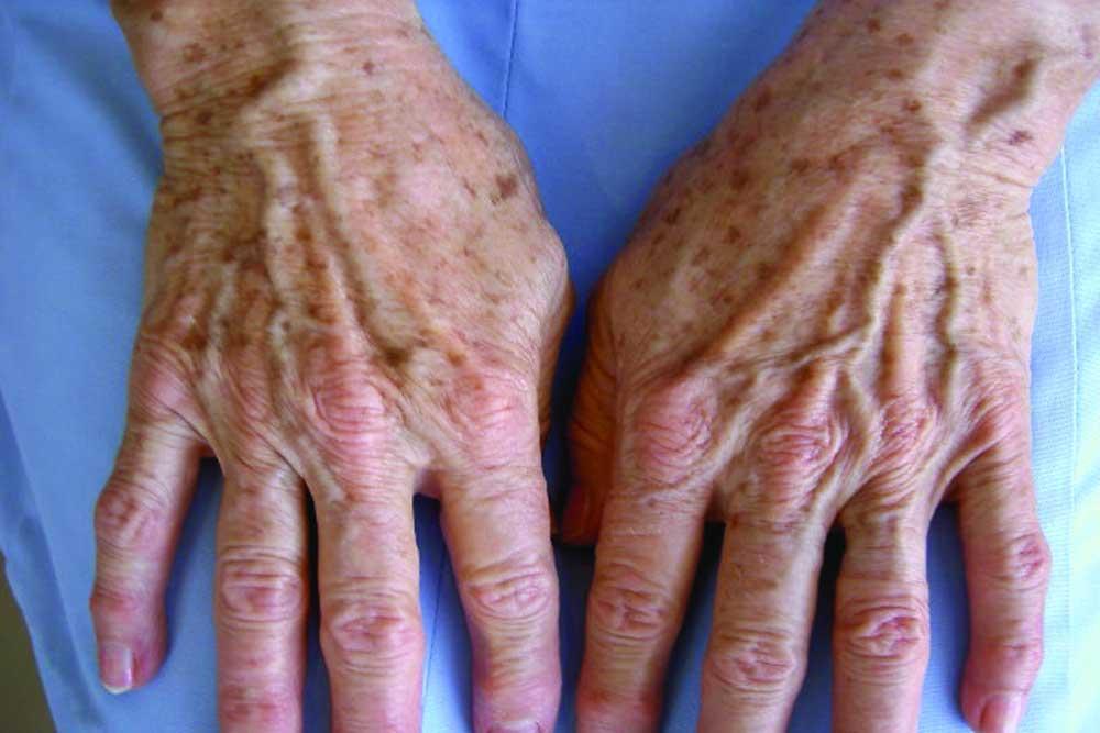 pigmentvlekken Dr Bracke dermatologie