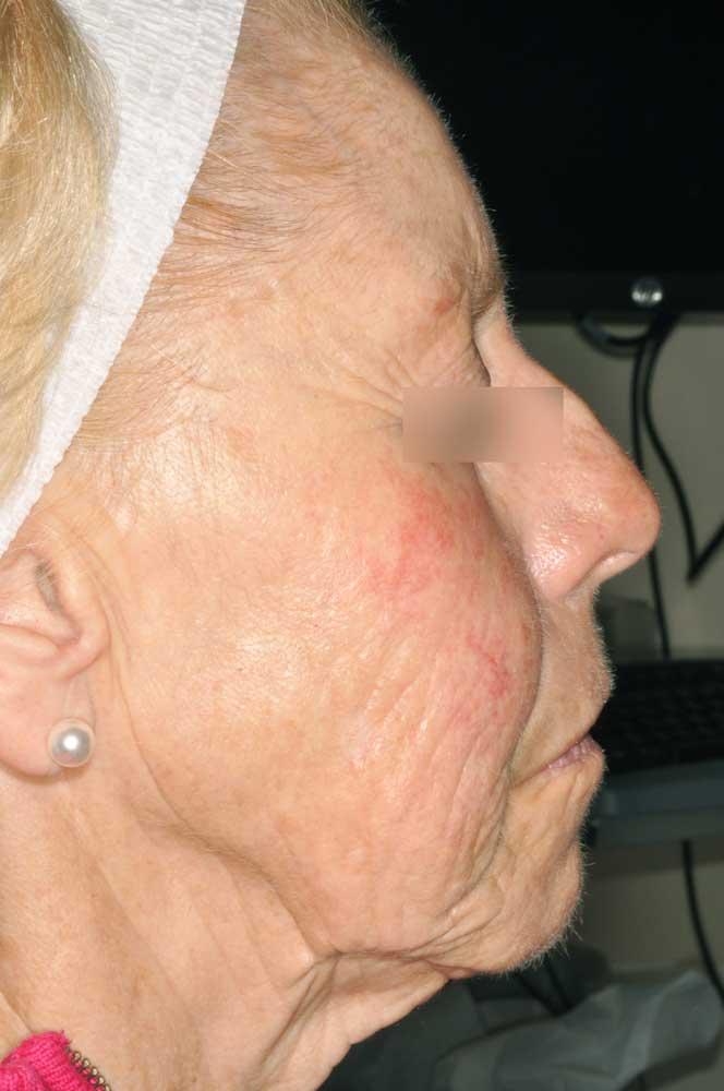 rimpels Dr Bracke dermatologie