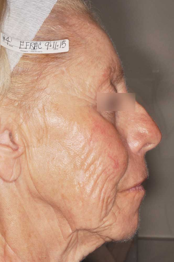 Huidverbetering Dr Bracke dermatologie
