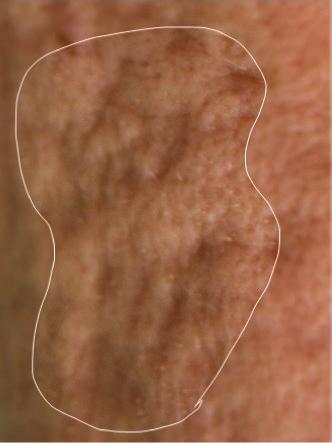 Rolling scars - acne littekens