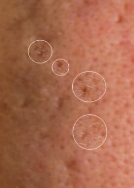 Icepick acne litteken