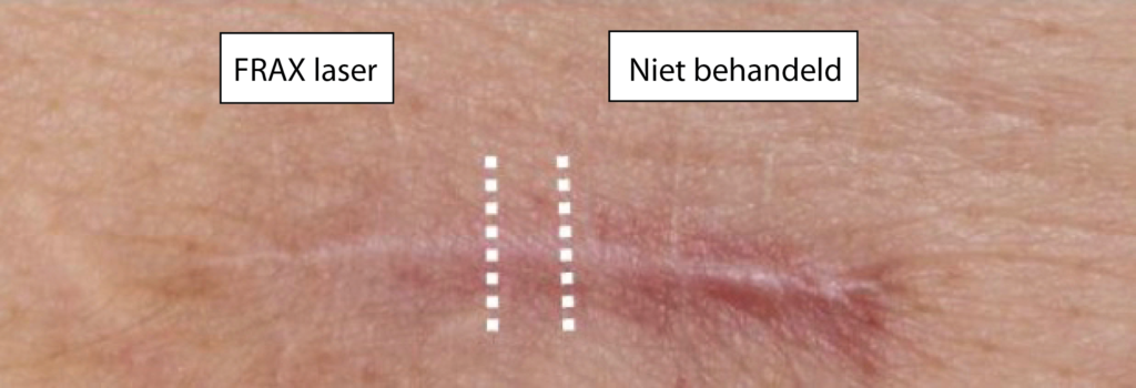 litteken laser